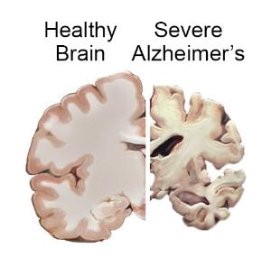 Look Inside the Brain of an Alzheimers Patient